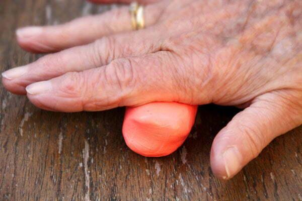 Handtherapie Ergotherapie Gouda e.o.